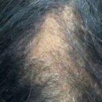 Queda acentuada de cabelos preocupa pacientes com Covid-19